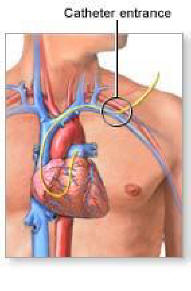 Right Heart Catheterization Pulmonary Critical Care