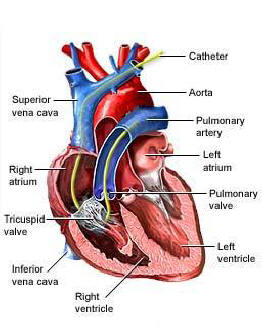 Right Heart Catheterization | Pulmonary & Critical Care
